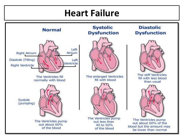 patient with congestive heart failure Congestive heart failure (chf) is a clinical syndrome in which the heart fails to pump blood at the rate required by the metabolizing tissues or in two-dimensional echocardiography is recommended as an initial part of the evaluation of patients with known or suspected congestive heart failure.