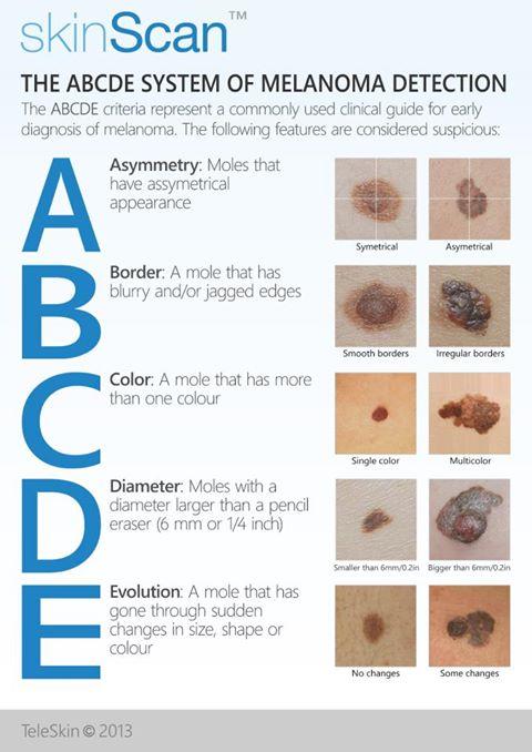 assess mole malignant potential cheat sheet by davidpol